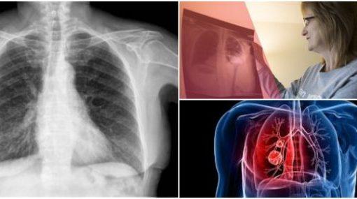 LAM Lung Disease (Lymphangioleiomyomatosis)